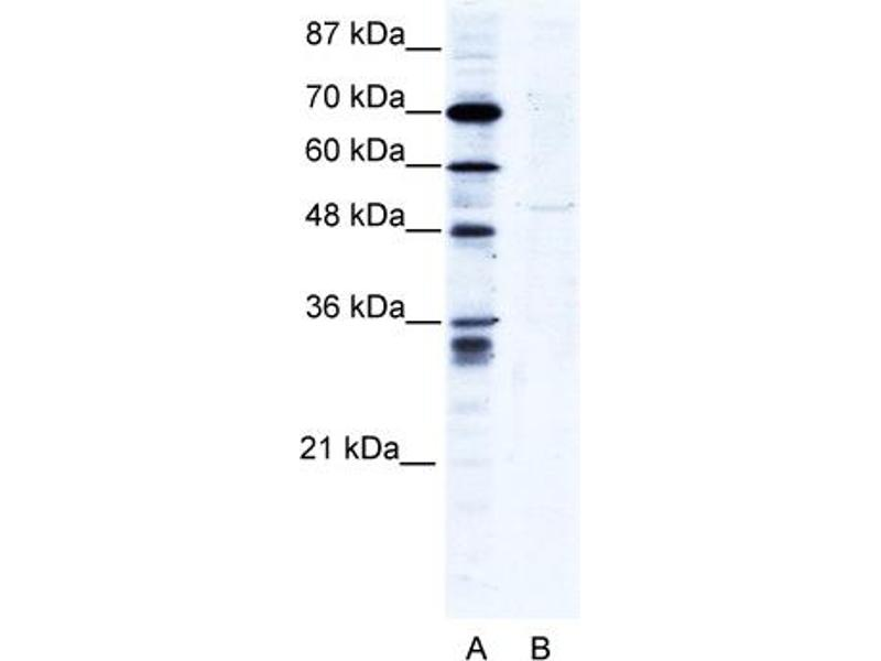 Western Blotting (WB) image for anti-Zinc Finger Protein 134 (ZNF134) (N-Term) antibody (ABIN183204)