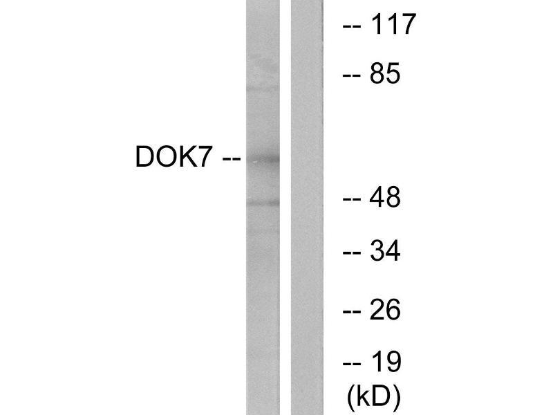 Image no. 3 for anti-Docking Protein 7 (DOK7) (N-Term) antibody (ABIN1576115)