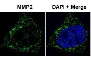 Immunofluorescence (IF) image for anti-MMP2 Antikörper (Matrix Metalloproteinase 2) (Internal Region) (ABIN268224)