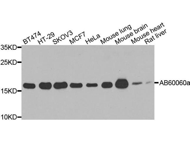 Western Blotting (WB) image for anti-ADP-Ribosylation Factor 1 (ARF1) antibody (ABIN1871066)