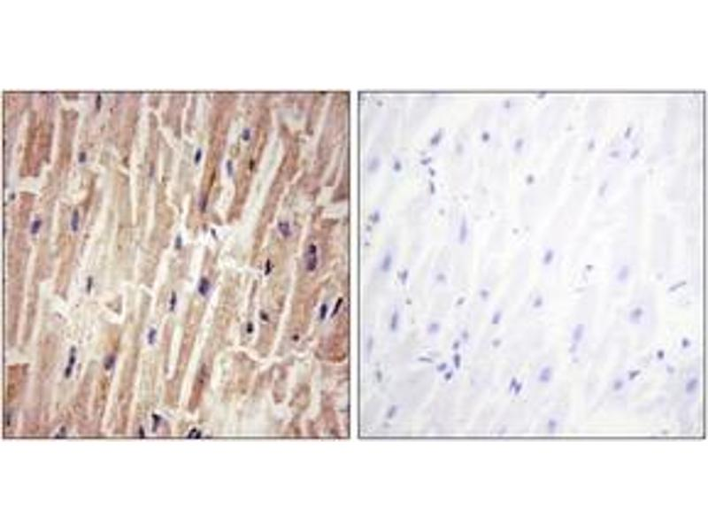Immunohistochemistry (IHC) image for anti-YAP1 antibody (Yes-Associated Protein 1) (pSer127) (ABIN1531475)