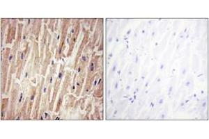 Immunohistochemistry (IHC) image for anti-Yes-Associated Protein 1 (YAP1) (AA 93-142), (pSer127) antibody (ABIN1531475)
