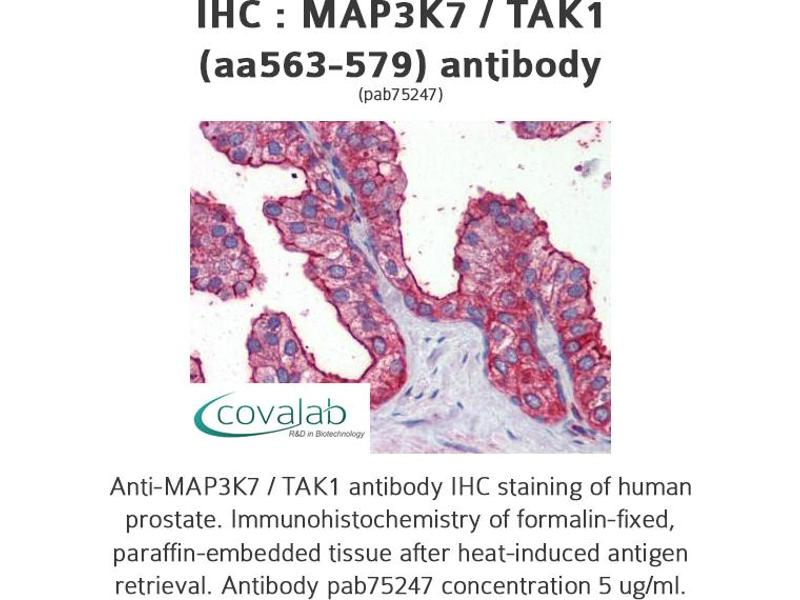 image for anti-MAP3K7 antibody (Mitogen-Activated Protein Kinase Kinase Kinase 7) (AA 563-579) (ABIN1736722)