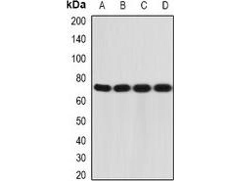 Western Blotting (WB) image for anti-Interleukin 12 Receptor beta 1 (IL12RB1) antibody (ABIN3197956)