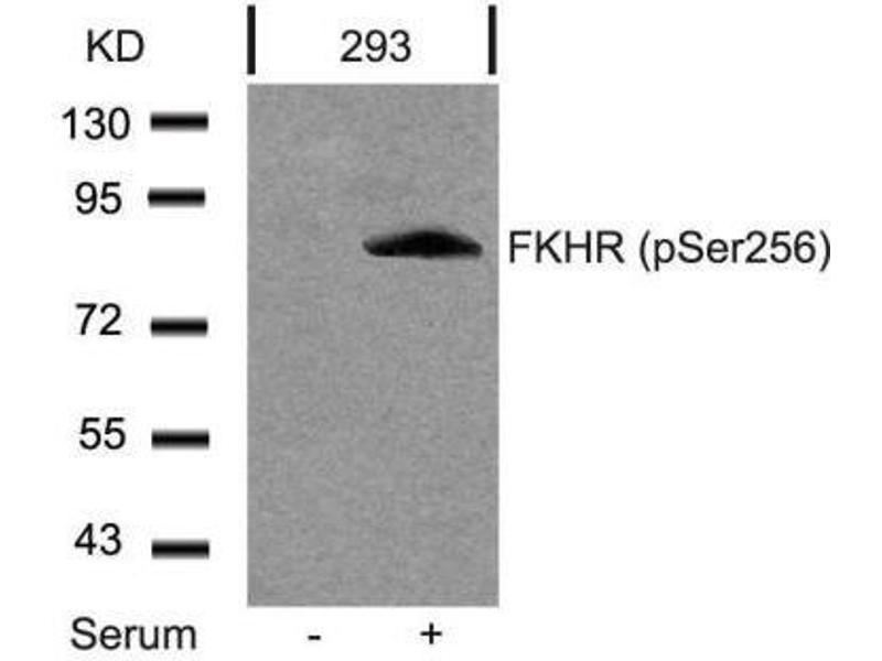 Western Blotting (WB) image for anti-Forkhead Box O1 (FOXO1) (pSer256) antibody (ABIN257291)