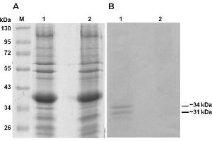 Western Blotting (WB) image for anti-Collagen, Type I (COL1) antibody (ABIN5596819)