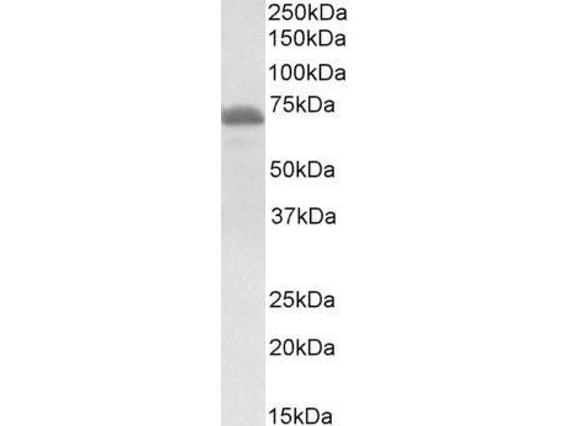 image for anti-IL2-Inducible T-Cell Kinase (ITK) (Internal Region) antibody (ABIN1589997)