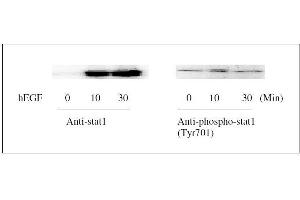 Image no. 6 for Signal Transducer and Activator of Transcription 1, 91kDa (STAT1) ELISA Kit (ABIN1981837)
