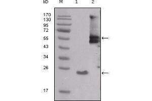 Western Blotting (WB) image for anti-V-Src Sarcoma (Schmidt-Ruppin A-2) Viral Oncogene Homolog (Avian) (SRC) (AA 10-193) antibody (ABIN1724696)