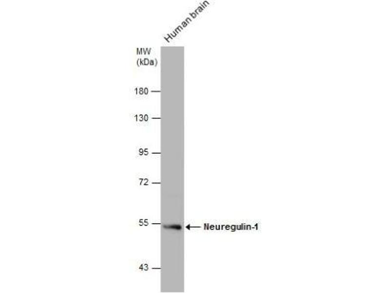 Western Blotting (WB) image for anti-Neuregulin 1 (NRG1) (Center) antibody (ABIN4338708)