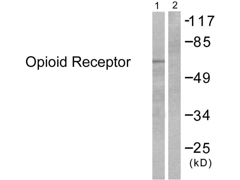 Western Blotting (WB) image for anti-Mu Opioid Receptor 1 antibody (Opioid Receptor, mu 1) (Ser375) (ABIN2449336)
