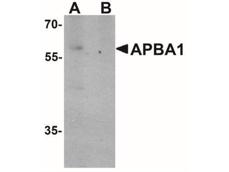 Western Blotting (WB) image for anti-Amyloid beta (A4) Precursor Protein-Binding, Family A, Member 1 (APBA1) (N-Term), (all Isoforms) antibody (ABIN4280965)