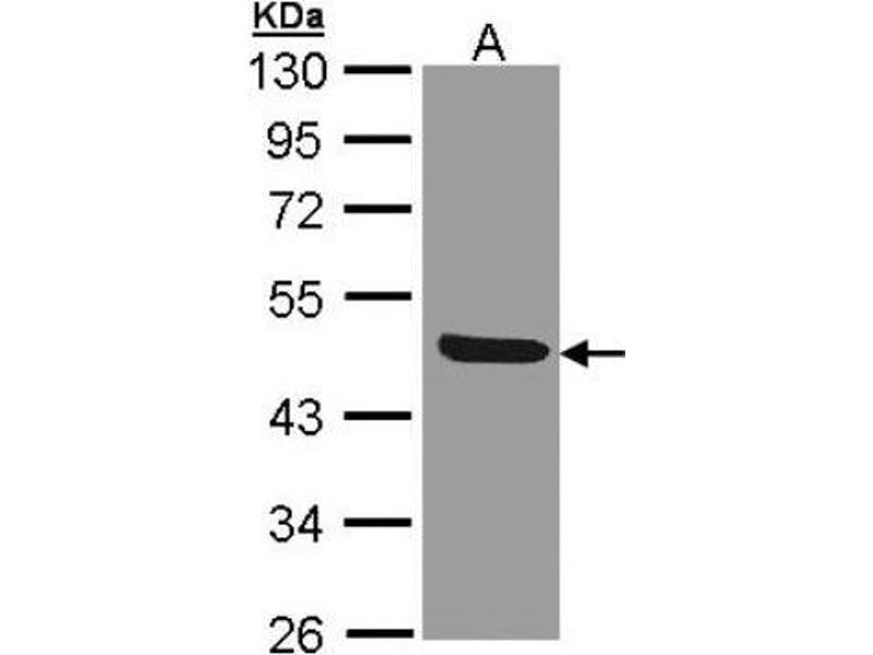 Western Blotting (WB) image for anti-IL1R2 antibody (Interleukin 1 Receptor, Type II) (Center) (ABIN442643)