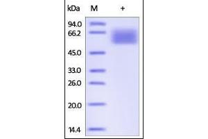 Image no. 1 for Transforming Growth Factor, beta Receptor II (70/80kDa) (TGFBR2) (AA 23-159) protein (Fc Tag) (ABIN2181811)