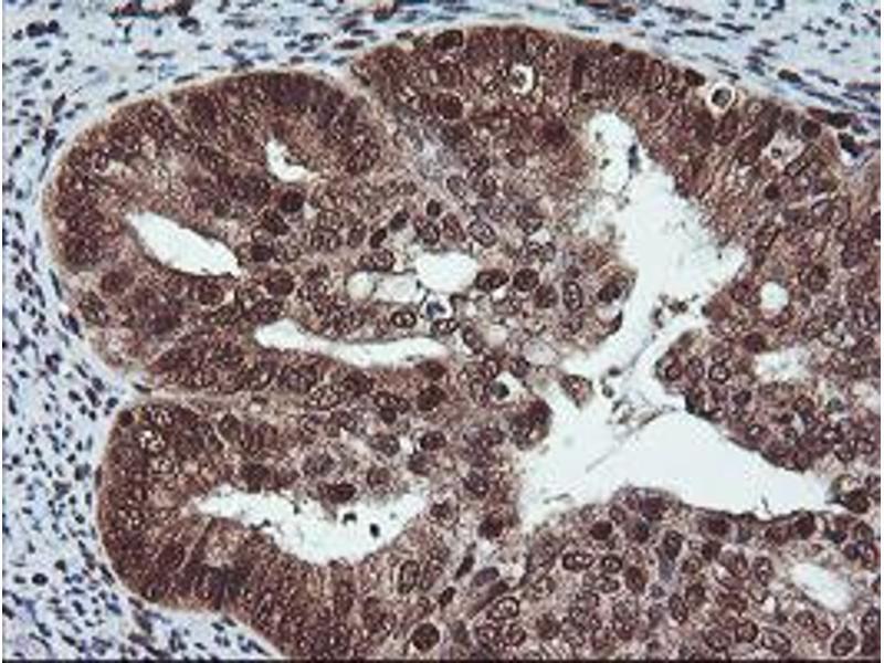 image for anti-COP9 Constitutive Photomorphogenic Homolog Subunit 5 (Arabidopsis) (COPS5) antibody (ABIN1498920)