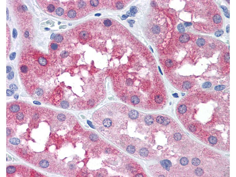 Immunohistochemistry (IHC) image for anti-Microtubule-Associated Protein tau (MAPT) (Ser404) antibody (ABIN574182)