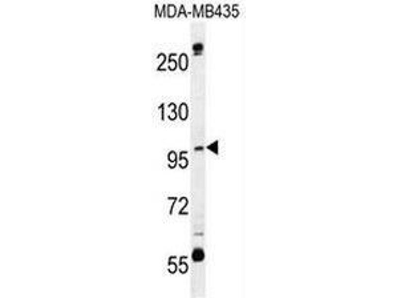 Western Blotting (WB) image for anti-CA026 (AA 286-314), (N-Term) antibody (ABIN950987)