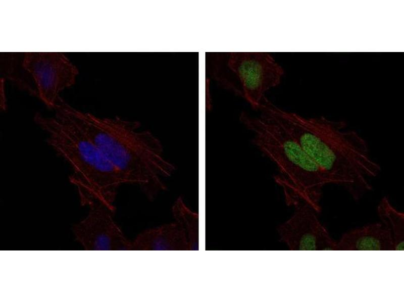 Immunocytochemistry (ICC) image for anti-MutS Homolog 6 (E. Coli) (MSH6) antibody (ABIN969293)