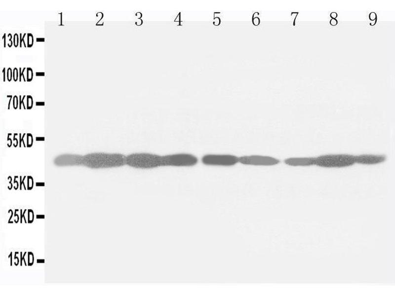 Image no. 1 for anti-Actin, beta (ACTB) (Cytosolic), (N-Term) antibody (ABIN3044484)