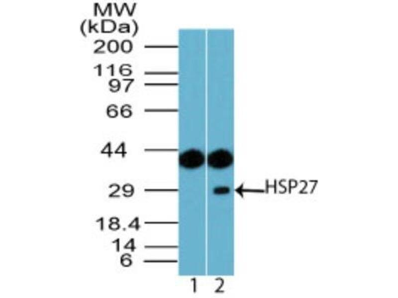 Western Blotting (WB) image for anti-HSPB1 antibody (Heat Shock 27kDa Protein 1) (ABIN4320006)