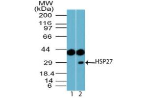 Western Blotting (WB) image for anti-Heat Shock 27kDa Protein 1 (HSPB1) antibody (ABIN4320006)