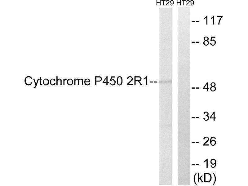 Image no. 2 for anti-Cytochrome P450, Family 2, Subfamily R, Polypeptide 1 (CYP2R1) antibody (ABIN1575993)