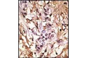 Immunohistochemistry (Paraffin-embedded Sections) (IHC (p)) image for anti-Microtubule-Associated Protein 1 Light Chain 3 beta (MAP1LC3B) (AA 88-118), (C-Term) antibody (ABIN1449627)