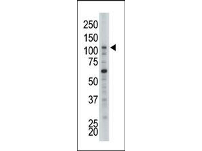 image for anti-Hexokinase 2 antibody (HK2) (N-Term) (ABIN360640)