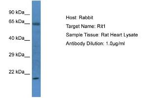 Western Blotting (WB) image for anti-Ras-Like Without CAAX 1 (RIT1) (N-Term) antibody (ABIN2786754)