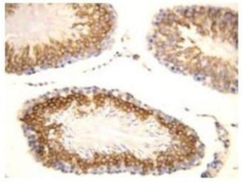 Immunohistochemistry (Paraffin-embedded Sections) (IHC (p)) image for anti-Fibroblast Growth Factor 8 (Androgen-Induced) (FGF8) (C-Term) antibody (ABIN448496)