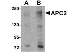 Western Blotting (WB) image for anti-APC2 antibody (Center) (ABIN499293)