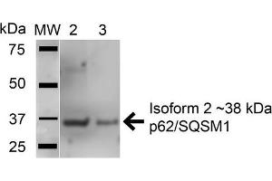 Image no. 2 for anti-Sequestosome 1 (SQSTM1) (AA 335-345) antibody (HRP) (ABIN5066114)