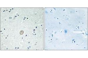 Image no. 1 for anti-Complement Component 3a Receptor 1 (C3AR1) (AA 175-224) antibody (ABIN1535564)
