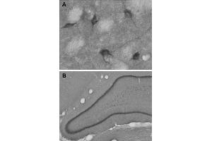 Image no. 2 for anti-High Affinity Choline Transporter (ChT) (AA 501-580) antibody (ABIN1742430)