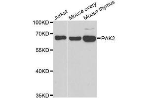 Image no. 3 for anti-P21-Activated Kinase 2 (PAK2) antibody (ABIN6145186)
