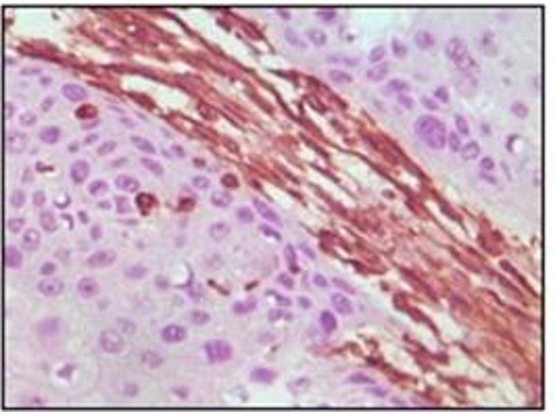 Immunohistochemistry (IHC) image for anti-Vimentin antibody (VIM) (ABIN1109482)