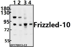 Image no. 1 for anti-Frizzled Family Receptor 10 (FZD10) (AA 132-180) antibody (ABIN6712818)