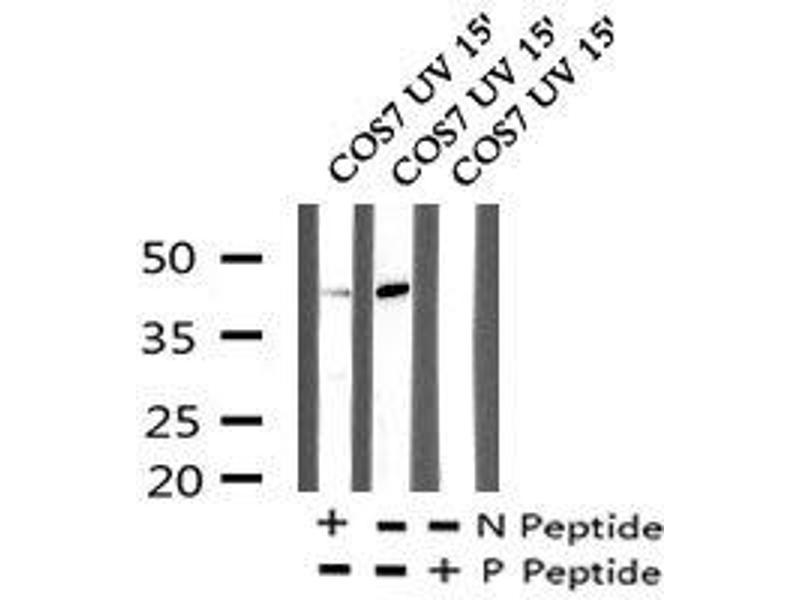 Image no. 2 for anti-Neutrophil Cytosol Factor 1 (NCF1) (pSer304) antibody (ABIN6269867)