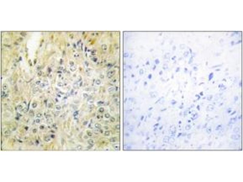 Immunohistochemistry (IHC) image for anti-Deleted in Lung and Esophageal Cancer 1 (DLEC1) (AA 1-50) antibody (ABIN1534201)