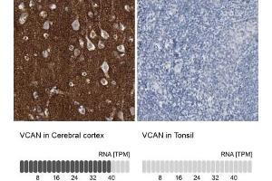 Immunohistochemistry (Paraffin-embedded Sections) (IHC (p)) image for anti-Versican (Vcan) antibody (ABIN4365244)