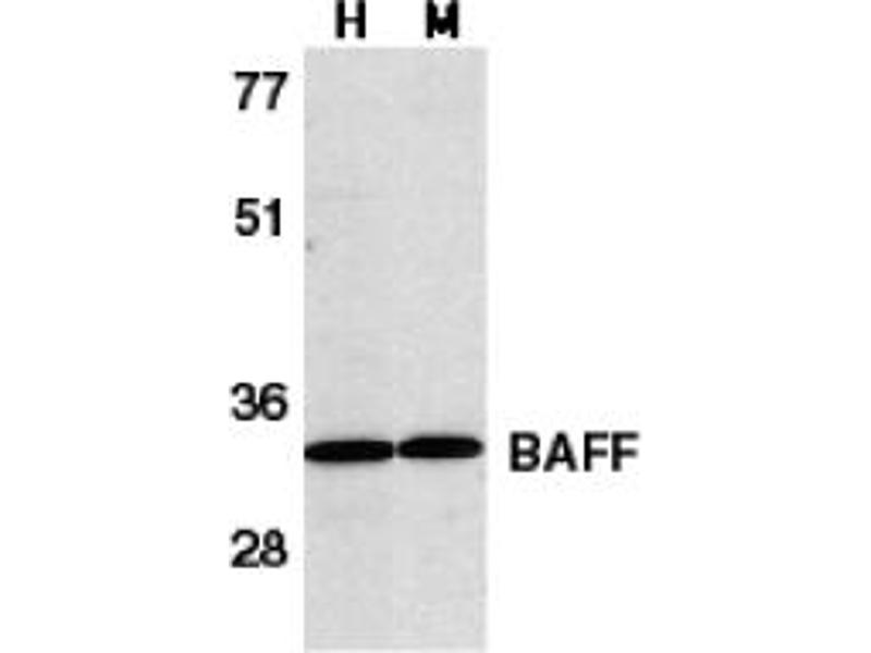 image for anti-TNFSF13B antibody (Tumor Necrosis Factor (Ligand) Superfamily, Member 13b) (C-Term) (ABIN204251)