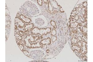 Image no. 1 for anti-Aquaporin 2 (Collecting Duct) (AQP2) (AA 177-202) antibody (ABIN707576)
