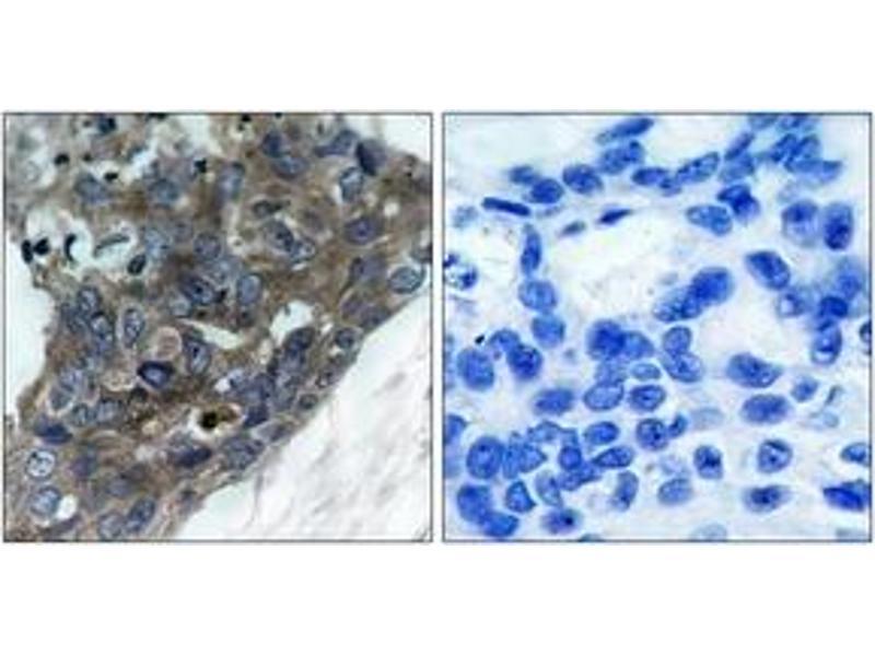 Immunohistochemistry (IHC) image for anti-Mitogen-Activated Protein Kinase Kinase Kinase 5 (MAP3K5) (AA 932-981) antibody (ABIN1532802)