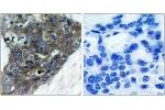 Immunohistochemistry (IHC) image for anti-Mitogen-Activated Protein Kinase Kinase Kinase 5 (MAP3K5) (AA 932-981) antibody (ABIN1532802)