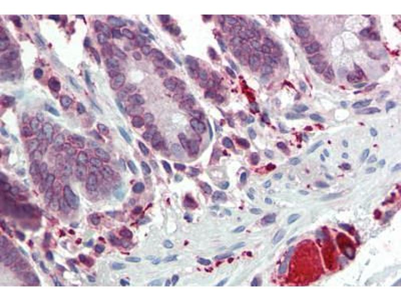 Immunohistochemistry (Paraffin-embedded Sections) (IHC (p)) image for anti-Toll-Like Receptor 7 (TLR7) (AA 706-728) antibody (ABIN334260)