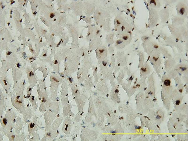 Immunostaining (ISt) image for anti-Adrenocortical Dysplasia Homolog (Mouse) (ACD) (AA 1-544) antibody (ABIN566298)