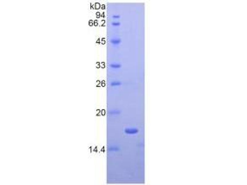 Image no. 2 for Apolipoprotein A-I (APOA1) ELISA Kit (ABIN6574163)
