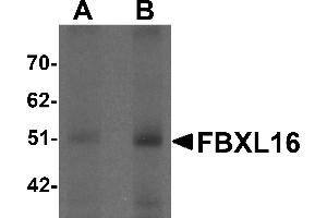 Image no. 2 for anti-F-Box and Leucine-Rich Repeat Protein 16 (FBXL16) (C-Term) antibody (ABIN1030390)