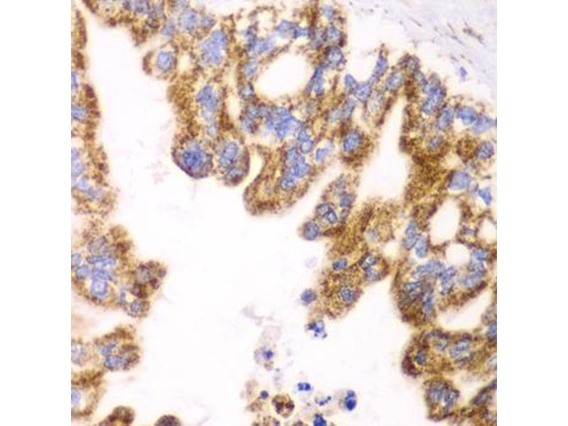 Immunohistochemistry (Paraffin-embedded Sections) (IHC (p)) image for anti-Glutamate Dehydrogenase 2 (GLUD2) antibody (ABIN2969603)