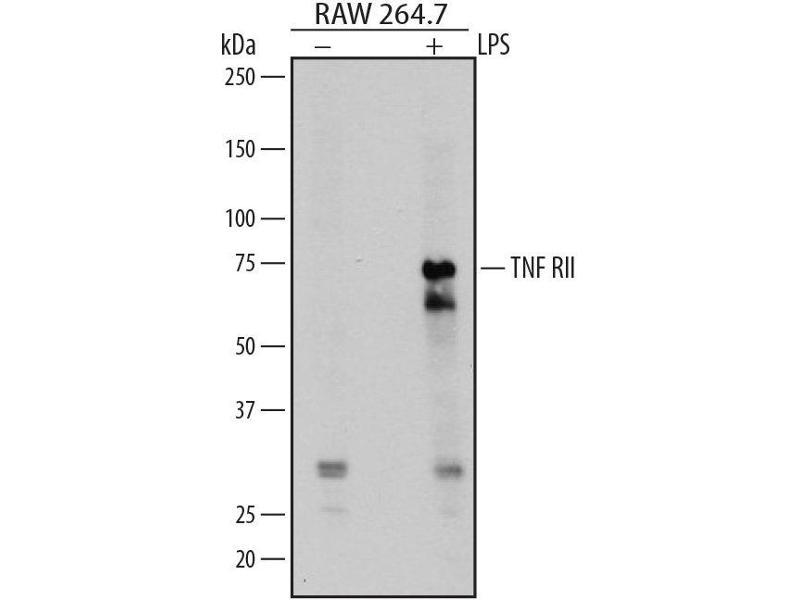 Western Blotting (WB) image for anti-Tumor Necrosis Factor Receptor Superfamily, Member 1B (TNFRSF1B) (AA 23-258) antibody (ABIN4899742)